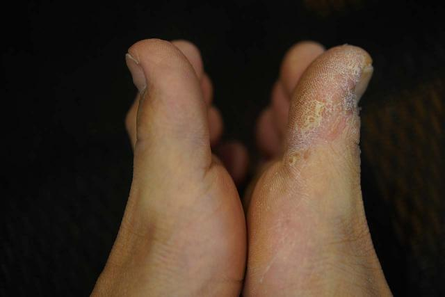 Picture of my feet where the left foot was free of athletes foot, but the right foot suffered from it. I blamed this fungal growth affliction on my hiking boot getting inundated with water on a hike that happened years ago yet the hardy fungus continues to live in that boot