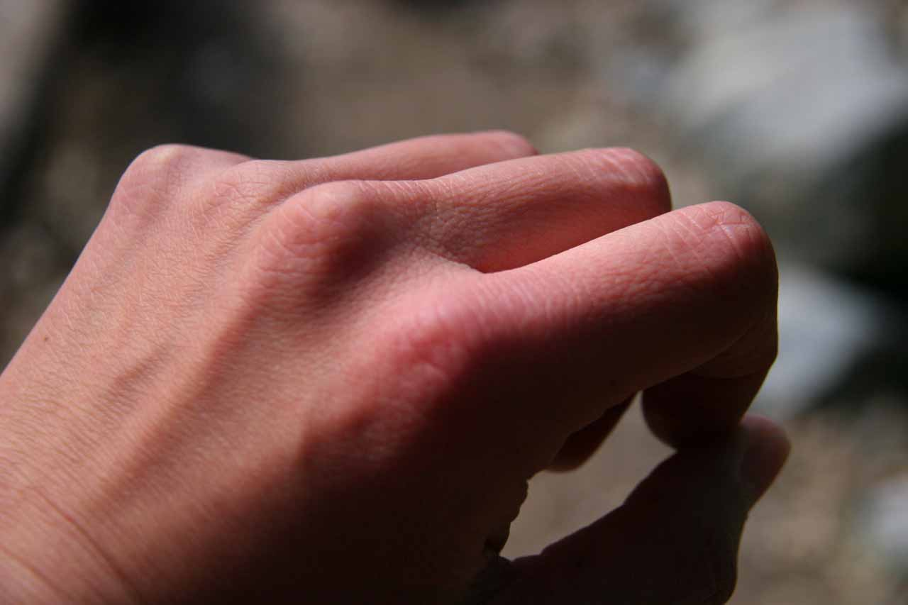 Irritated knuckle possible from poison oak
